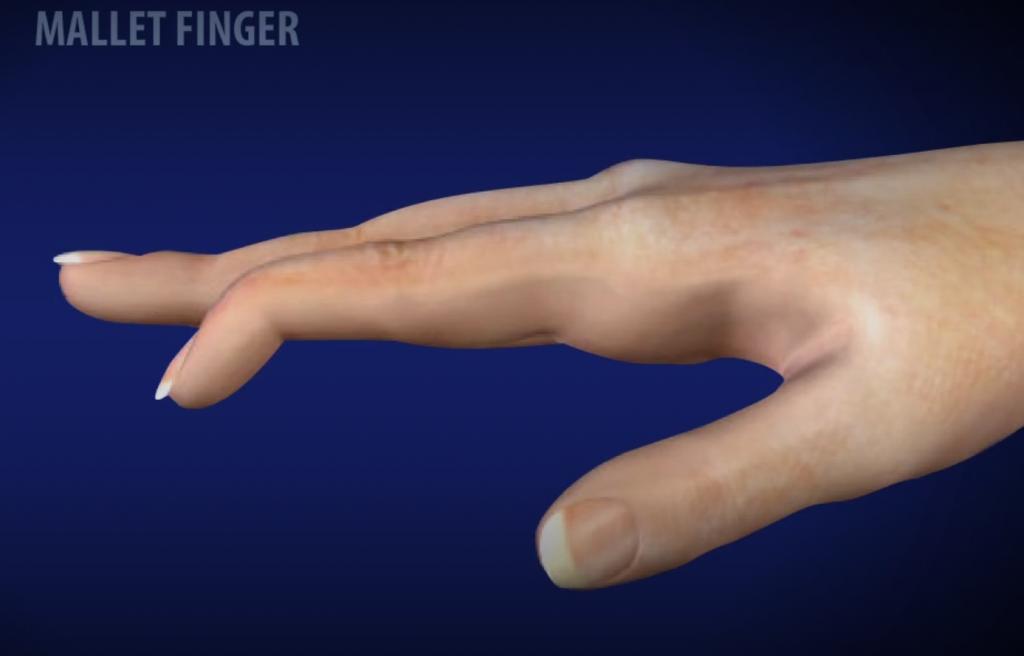 Mallet finger injury